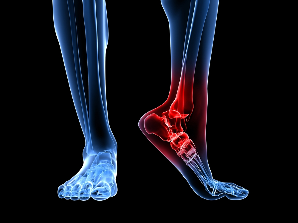 Foot pain treatment in Scottsdale, AZ | 750x1000