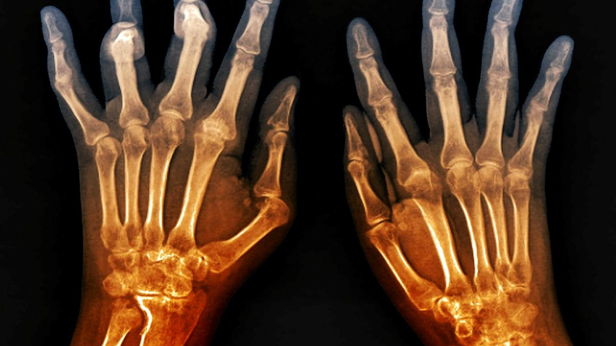 Clinical Update Rheumatoid Arthritis Hand Exercises The Chartered Society Of Physiotherapy