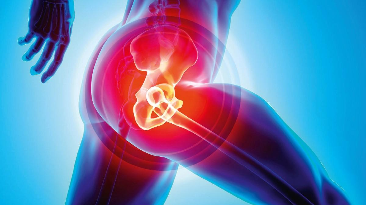 Hip Replacement Surgery >> Hip Replacement The Pros And Cons Of Early Surgery The