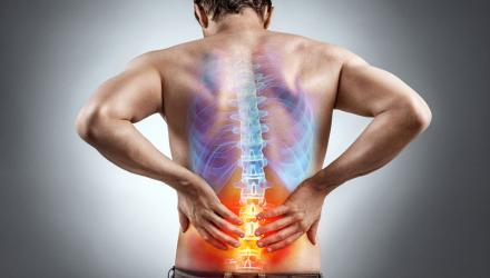 Colour x-ray of an inflamed back