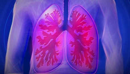Illustration of lungs inflamed with COPD
